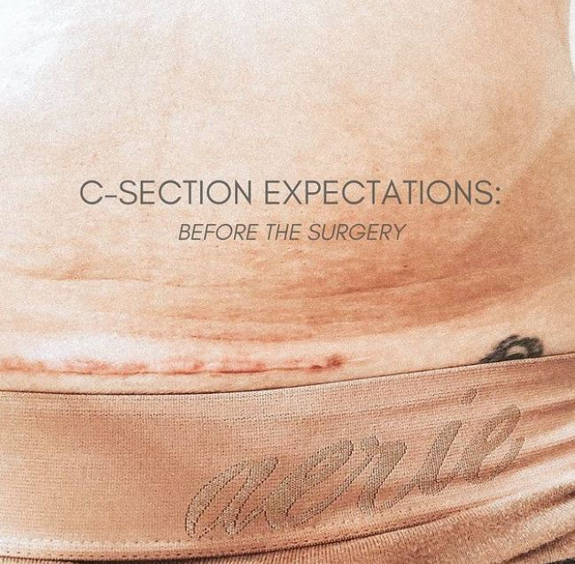 C-SECTION PRE-OP EXPECTATIONS