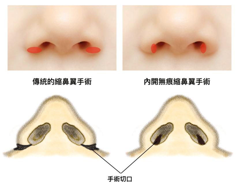 內開無痕縮鼻翼手術