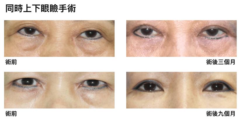 下眼瞼整形手術