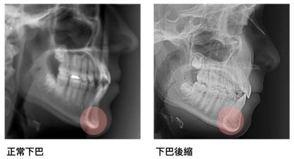 墊下巴手術, 謝宇軒醫師, 下巴整形