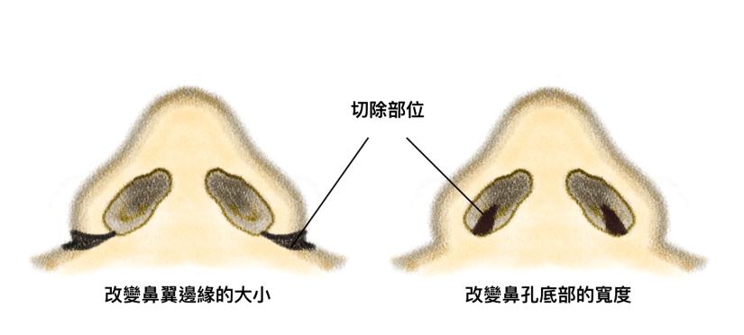 鼻翼手術 縮鼻翼手術 內開縮鼻翼手術 鼻孔及鼻翼矯正手術
