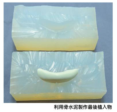 客製化3D列印墊下巴手術流程