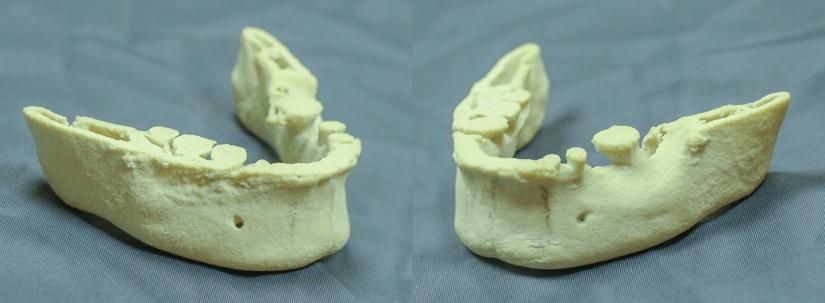 下巴整形 3D列印 3D 列印模擬技術