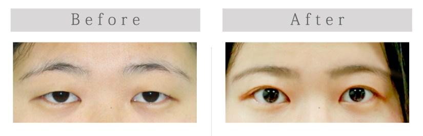 謝宇軒 雙眼皮 Blepharoplasty upper