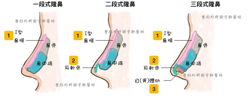 三段式Gore-tex隆鼻