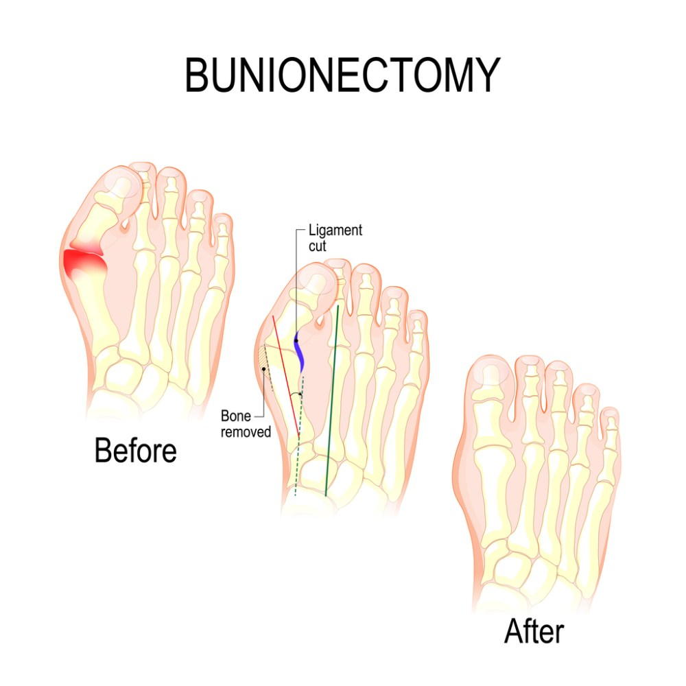 medium resolution of diagram of bunion