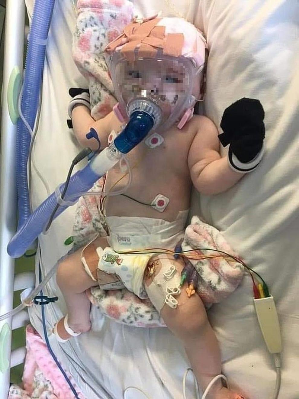 Coronavirus in ospedale dopo l'intervento a cuore aperto, bimba di 6 mesi attaccata al respiratore lotta per la vita