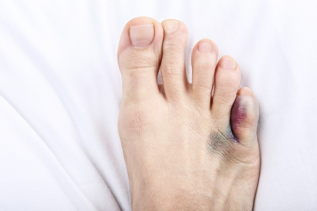 hight resolution of foot or toe bruise symptom checker