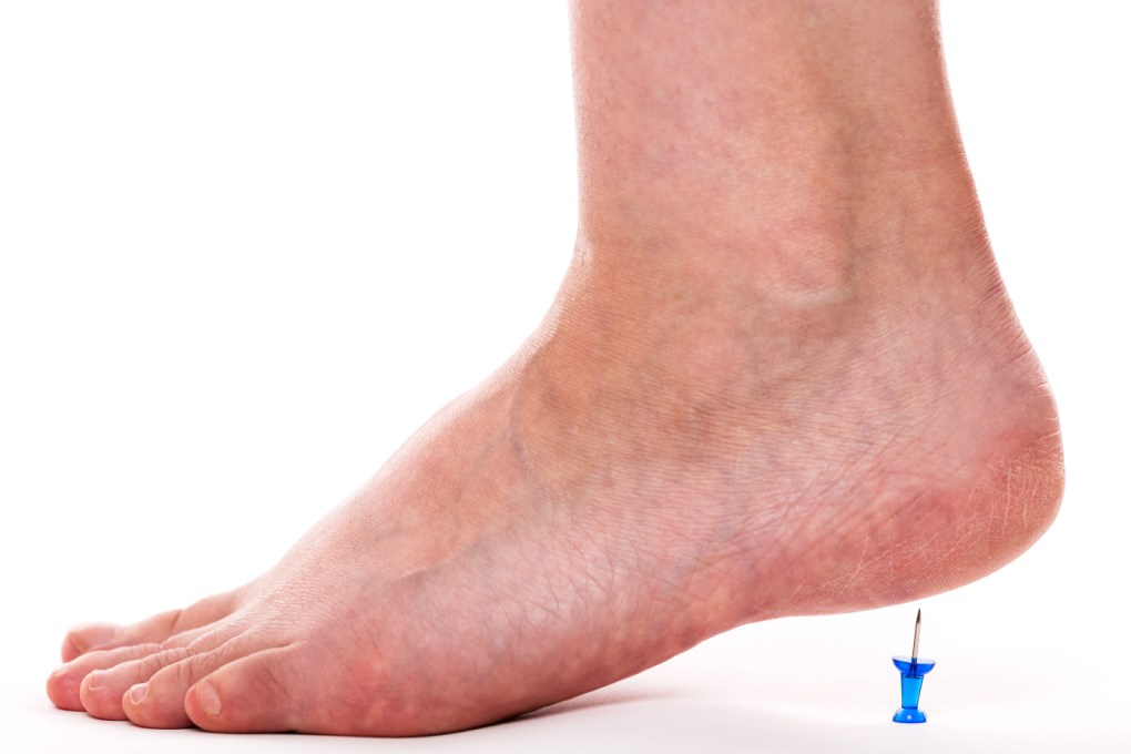 hight resolution of plantar fasciitis symptom checker