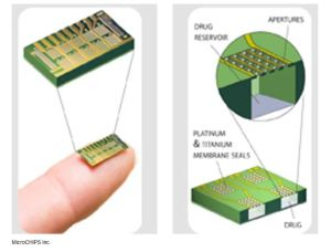 Bill Gates funds birth control microchip that lasts 16 years inside the body and can be turned on or off with remote control