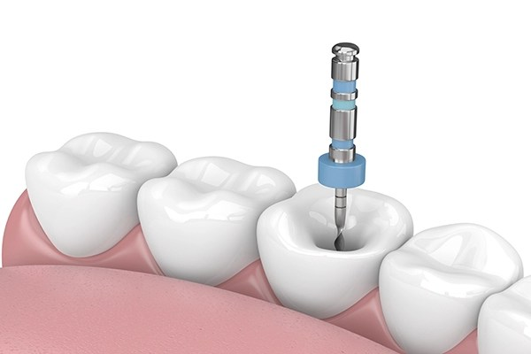 Endodontic Treatment (Root Fillings)