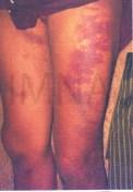မွန်ပြည်နယ် ချောင်းဆုံး ဒုရဲအုပ် ကျော်စွာခိုင် ရိုက်နှက်မှုကြောင့် ကိုယ်လက်အင်္ဂါချို့ယွင်းသွားသူ မင်းသက်ပိုင်စိုး