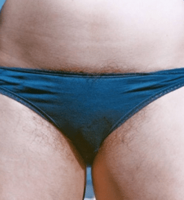 Opinion you Girls pubic hair intolerable