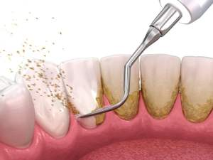 kamenac se uklanja sa zuba