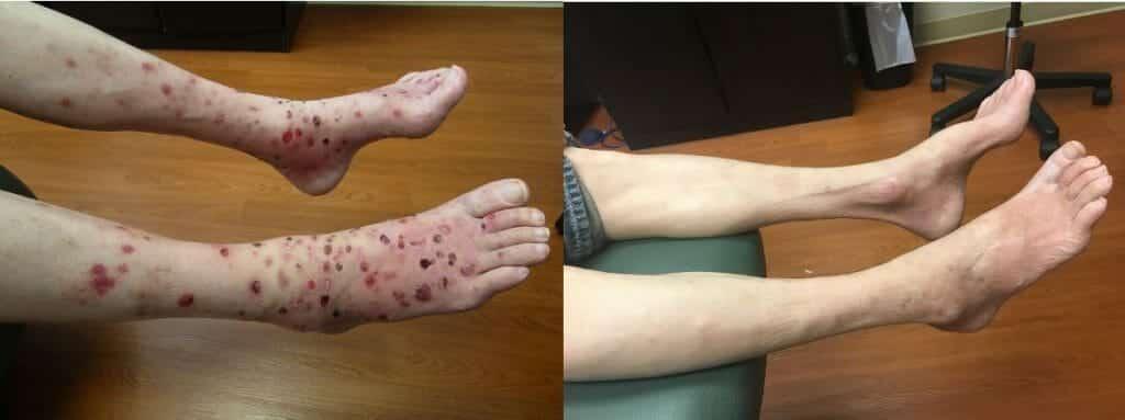 Eczema Treatments Naperville | Eczema Therapy Morris IL