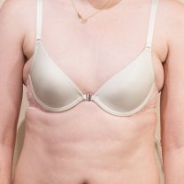 Before (34A) Cups are too small, and breast tissue is over flowing on the sides