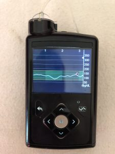 ButDoISay | A Science Guy's Life on the Medtronic MiniMed 670G