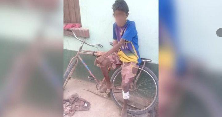 Santa Victoria Este: Murió el niño wichi que ingresó al hospital por desnutrición