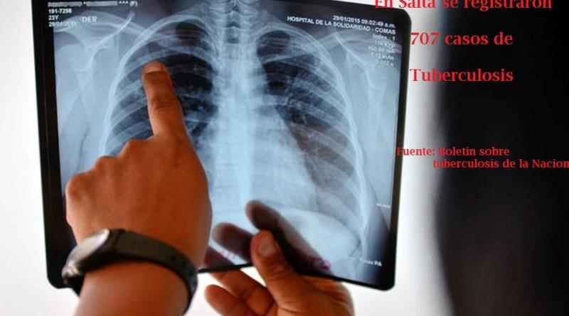 Tuberculosis: la enfermedad de la pobreza