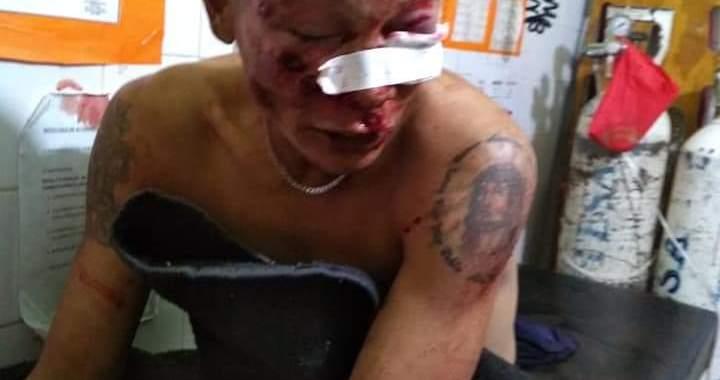 Grave: Policías disparan balas de goma en la cara a un hombre en General Ballivián
