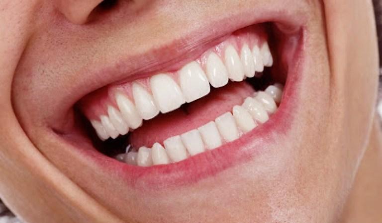Dişler için En Zararlı 10 Yiyecek
