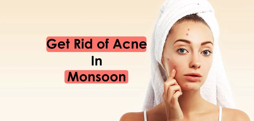 Acne issues, Get Rid of Acne During Rainy Season