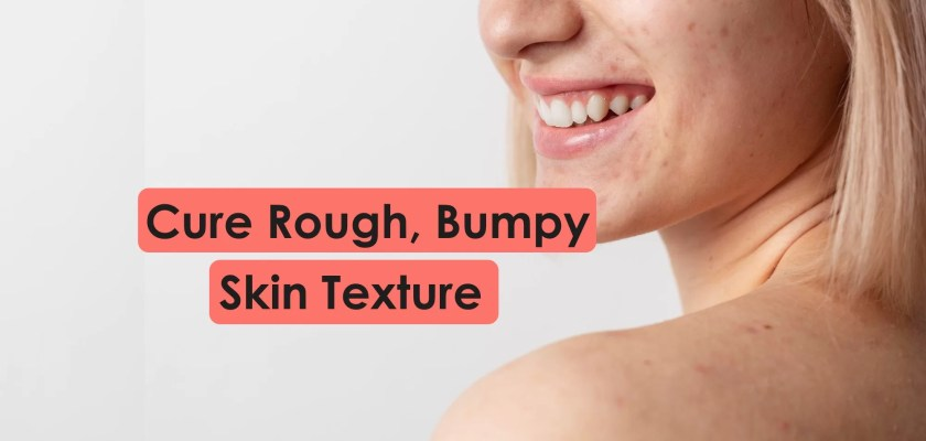 Cure rough bumpy dry grainy skin texture