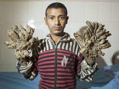maladie de l'homme-arbre
