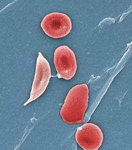 Blood from a patient with sickle cell disease, a form of hemoglobinopathy. Image credit: CDC/Sickle Cell Foundation of Georgia
