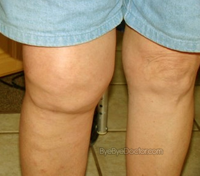 Knee Pain Location Diagnosis