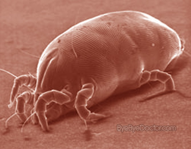 Dust Mites  Pictures Allergy Symptoms Rash Treatment Causes Removal
