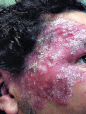 3 acne