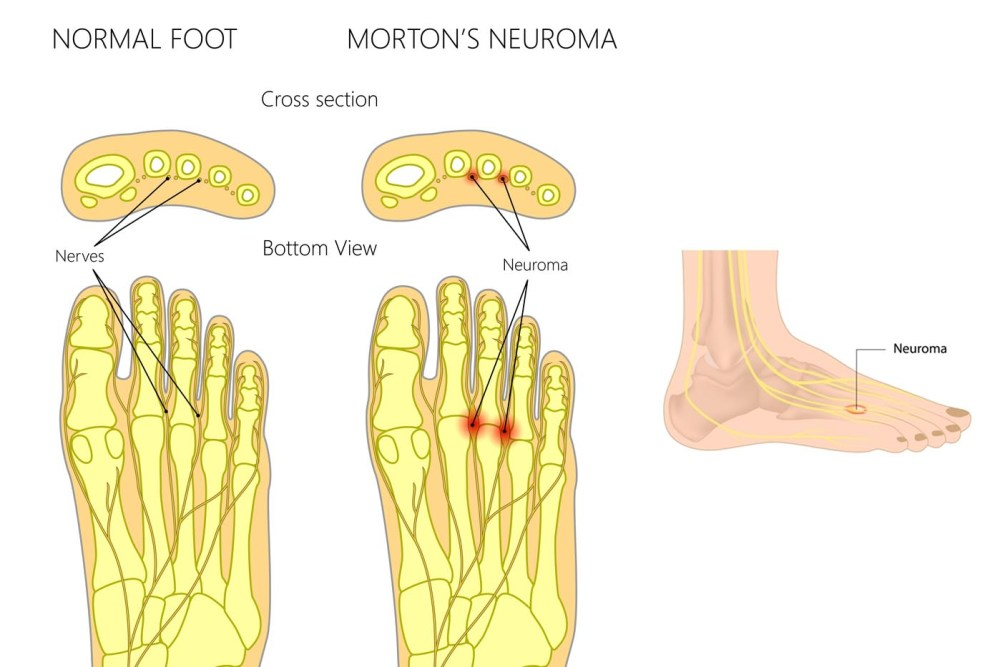 medium resolution of sometimes surgery is required or you can talk with your doctor about custom orthotics to wear in shoes better fitted to your feet for foot pain relief