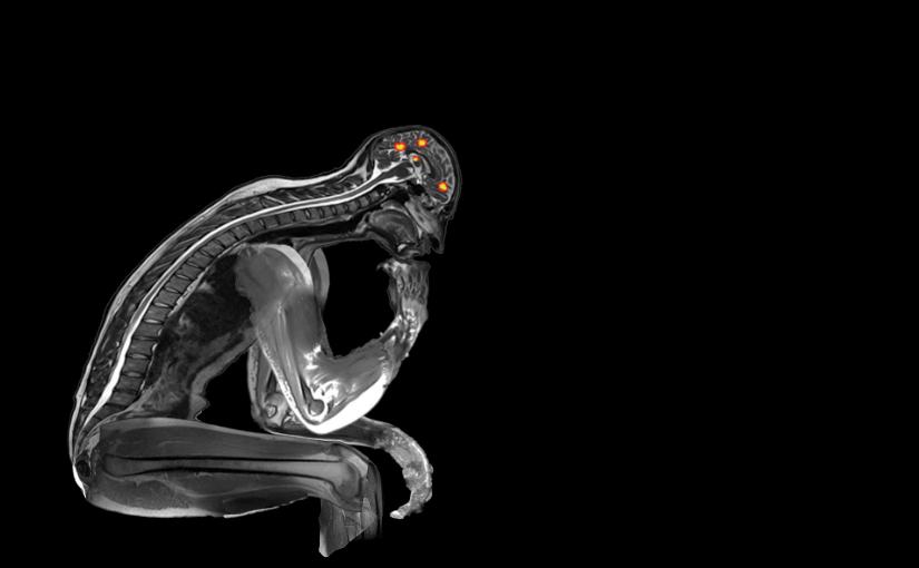 "Nick Byrd's ""Thinker fMRI"""