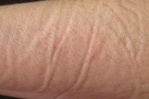 Mærke på hud