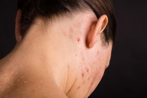 close-up of the skin on my neck
