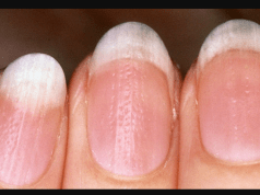 3 Nail Disorders You Must Never Ignore