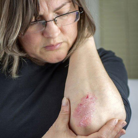 Mujer mostrando su codo con síntomas de psoriasis