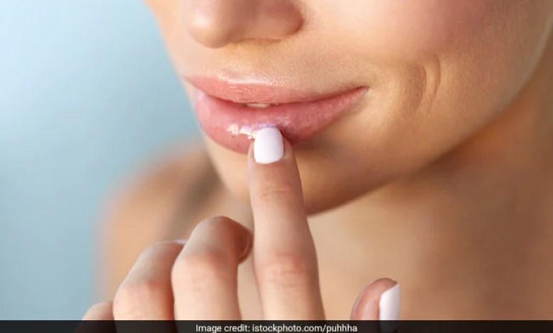 الإسمرار حول الفم ..أسبابه وطرق علاجه
