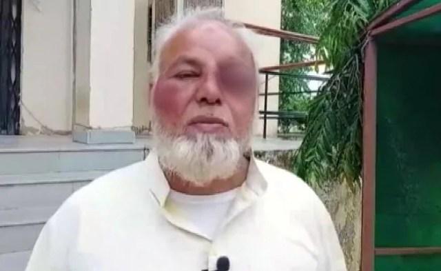 Beaten For Not Chanting 'Jai Shri Ram', 'Modi Zindabad': Rajasthan Driver