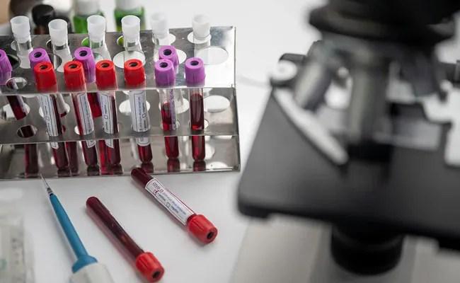 ब्रिटेन में इस साल के अंत तक बनकर तैयार हो जाएगी कोविड-19 की वैक्सीन