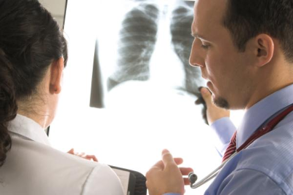 Doctors consult over an x-ray