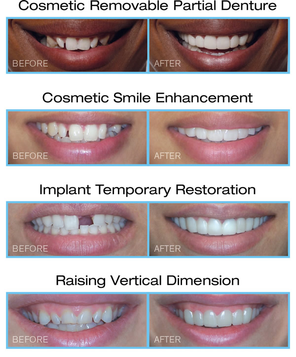 Filing Canine Teeth Before And After : filing, canine, teeth, before, after, Vivien, Chadkewicz,, Snap-On, Smile