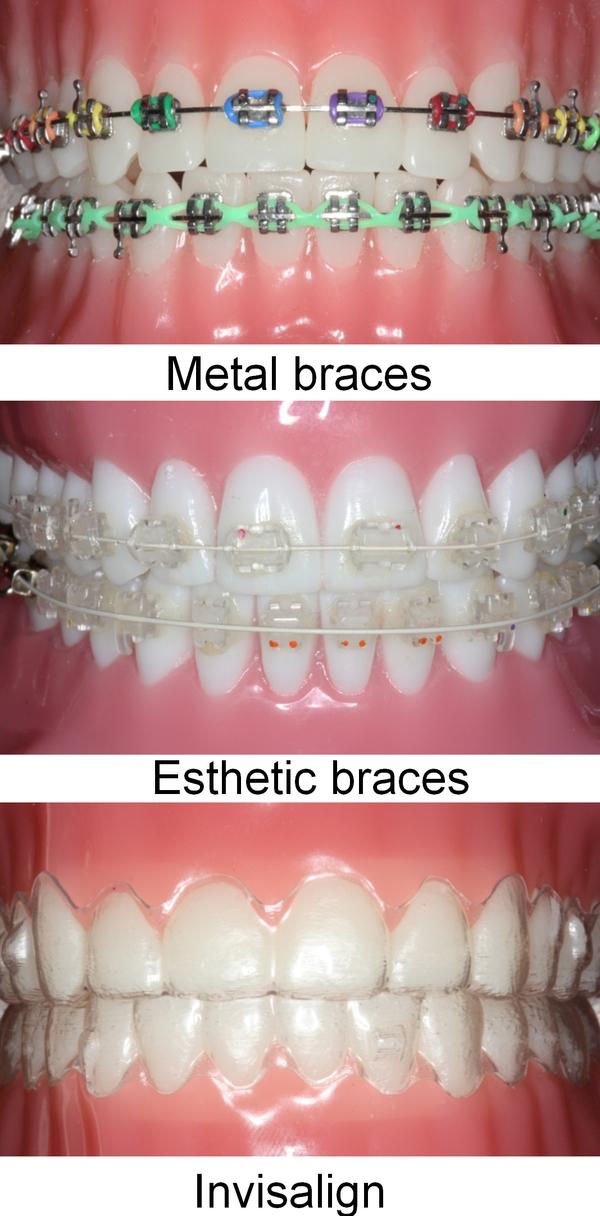Odessa TX Orthodontist | Orthodontics | Dental Solution P.A.