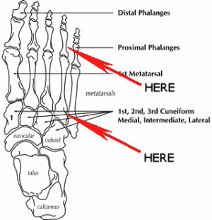 Foot Diagram | This is where I fractured my foot putting