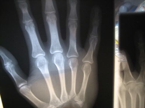 Bones X Ray Of My Broken Pinky Finger I Had To Get A
