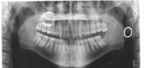 teeth  Full mouth xray that I got prior to having my