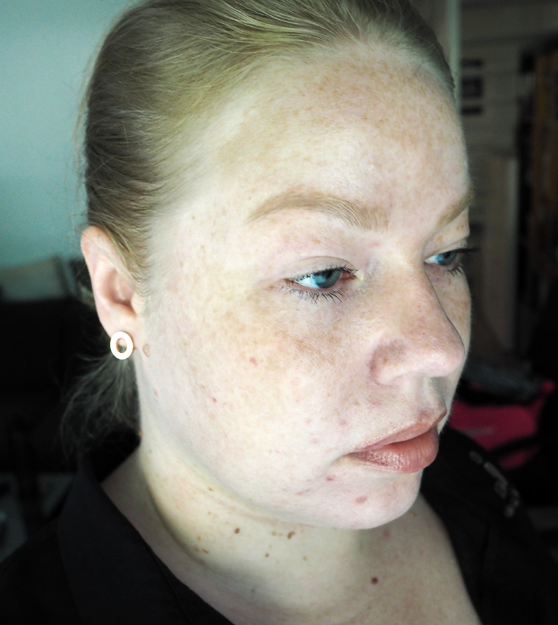 vitiligo pale freckled skin