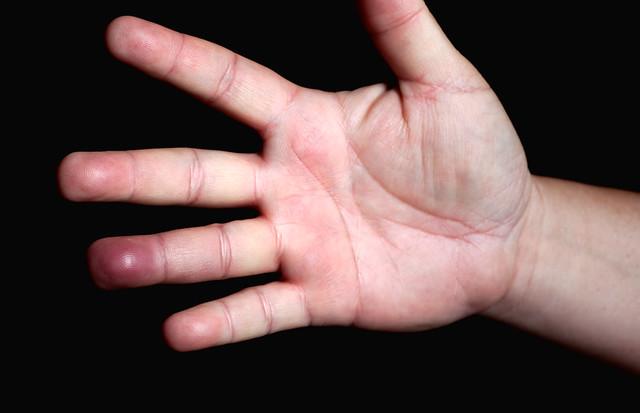 My Smashed Finger  I smashed my finger in the garage door y  Flickr