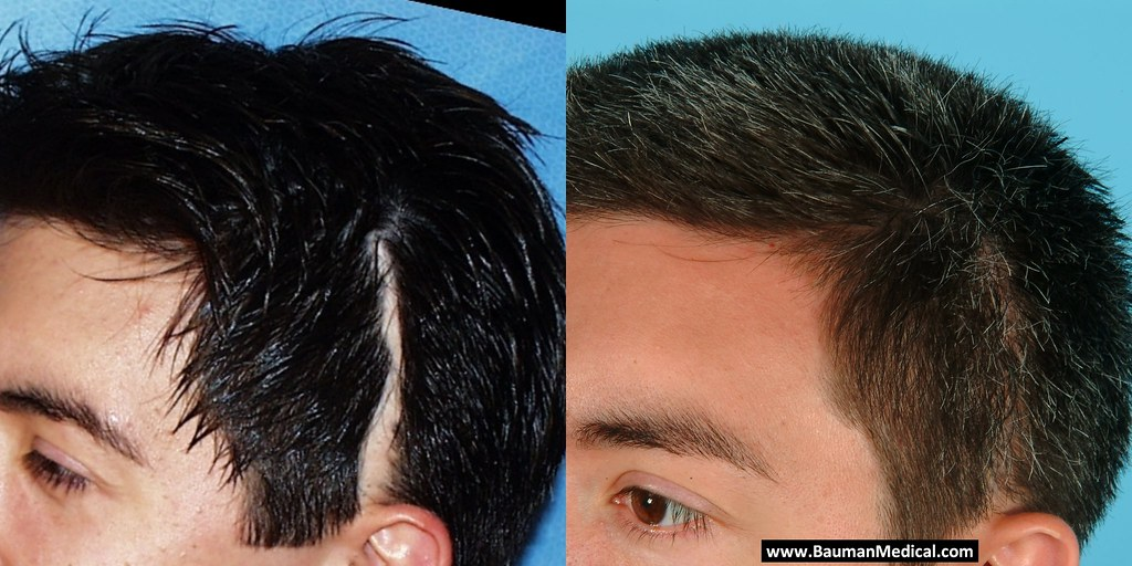 Scalp Scar Correction Hair Transplant1 This Surgical
